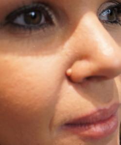 Выросла родинка: стоит  ли волноваться за рост невусов