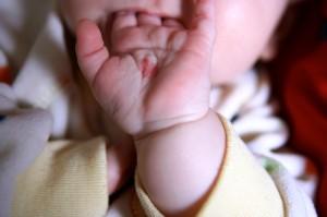 Как предотвратить появление родинок