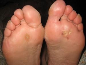 Как избавиться от подошвенной бородавки: оздоровление кожи
