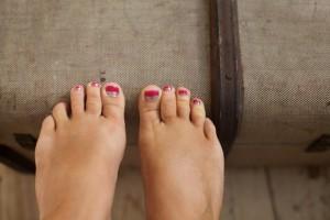 Родинки на пальцах ног и в чем может заключаться опасность