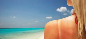 Как защитить родинку от солнца?
