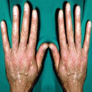 Причины появления бородавок на руках: находим и обезвреживаем