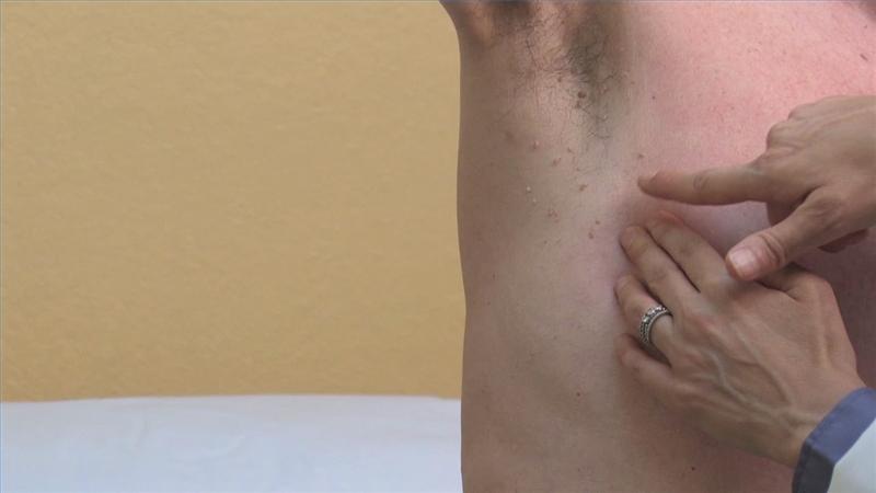 Бородавка кожное заболевание