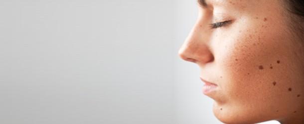 Как избавиться от папиллом на половых губах