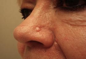 Как удалить родинку на носу?