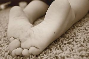 Родинки на ступнях: такие невусы необходимо удалить как можно скорее